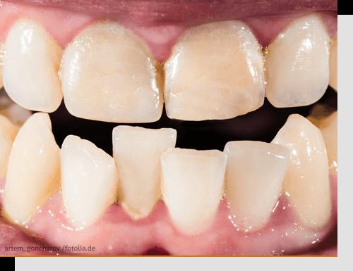 Die häufigsten Zahnfehlstellungen: Überbiss, Kreuzbiss