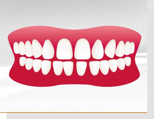 Tun zahnlücke vorne gegen was Diastema